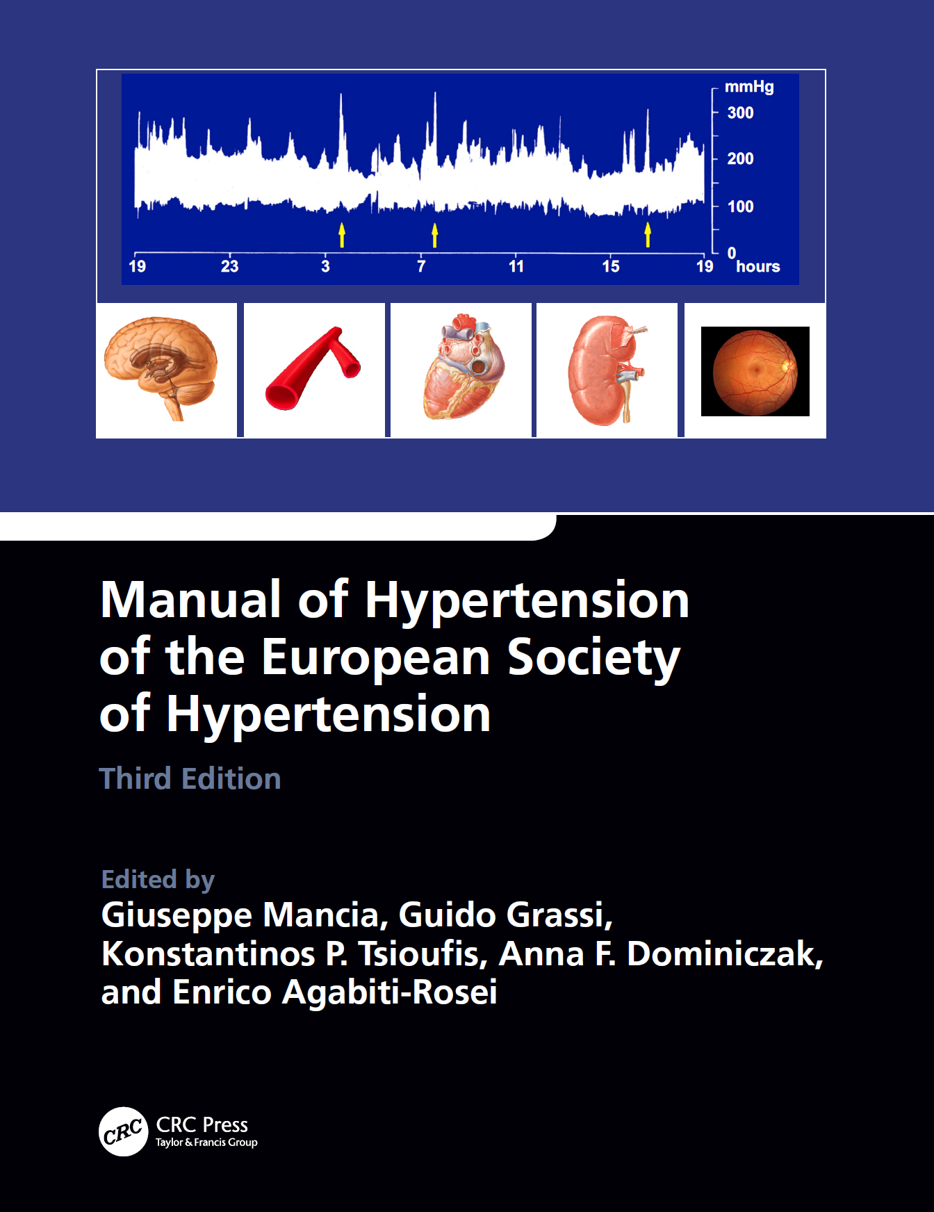 Manual of Hypertension of the European Society of Hypertension